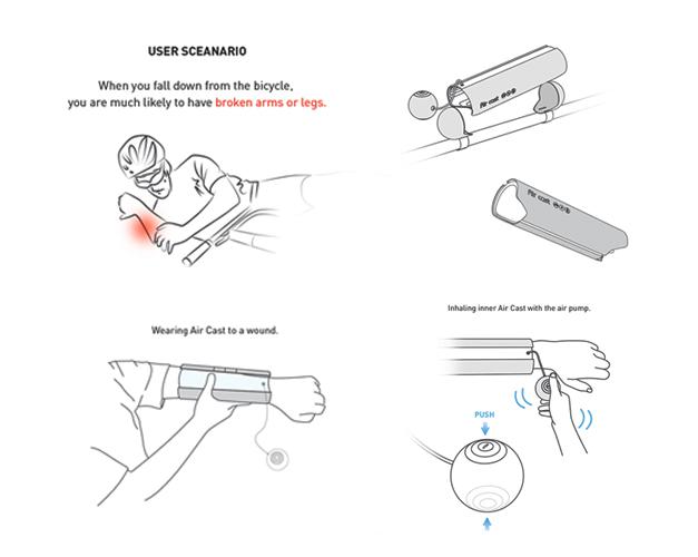 Platre gonflable pour fracture